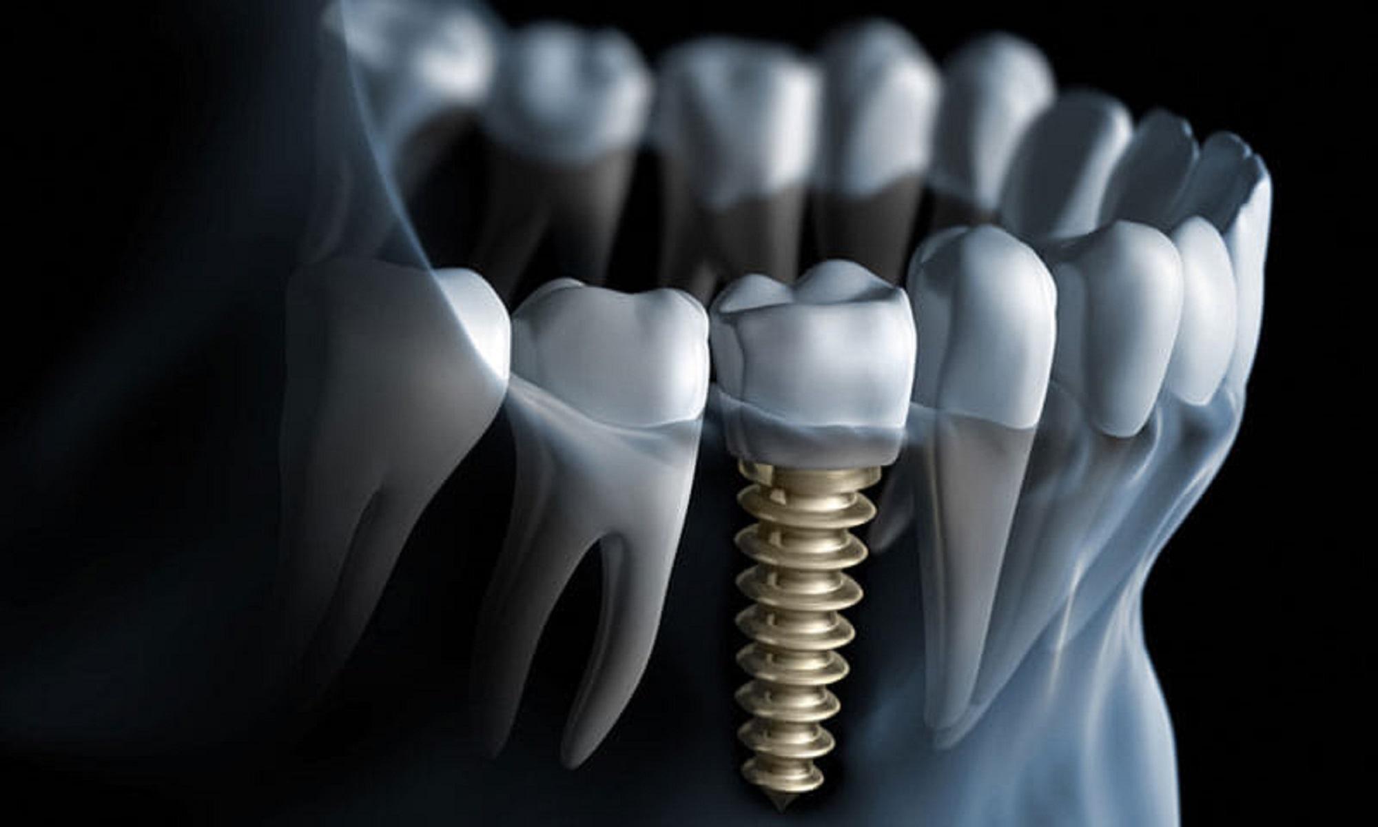 stavte-pravilnyj-implantat-ili-vy-ne-smozhete-nikogda-delat-mrt-1